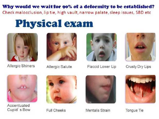 myofunctional therapy Cork